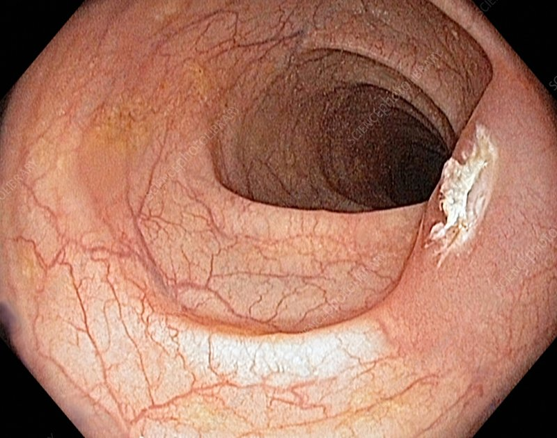 Colon polyp after surgical removal