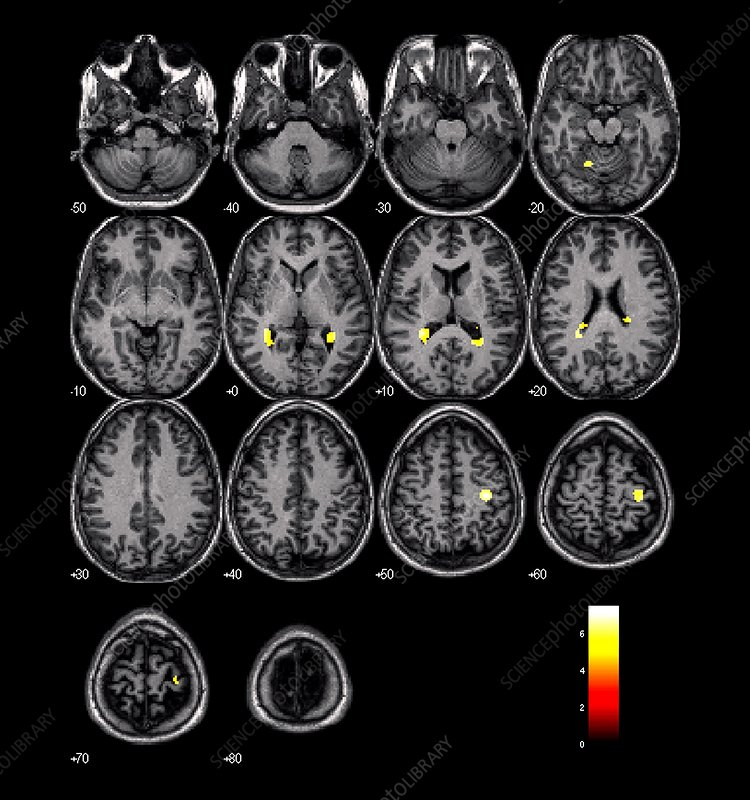 Motor area brain activation, MRI scans