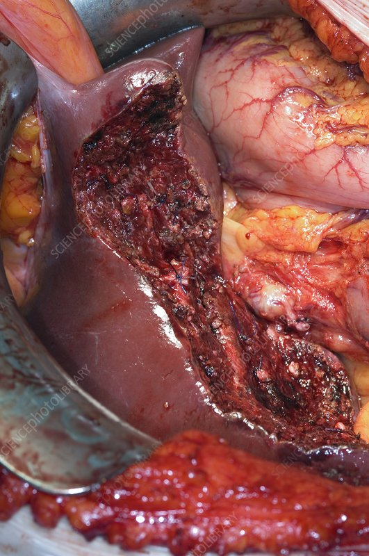 Gall Bladder Cancer Surgery Stock Image C001 8157