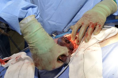 Spleen removal surgery