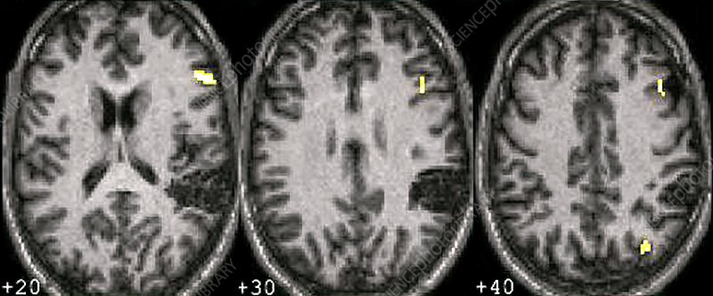 Language area brain activation, MRI scans