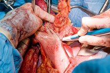 Oesophageal cancer surgery