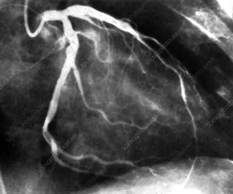 Distorted coronary arteries, angiogram