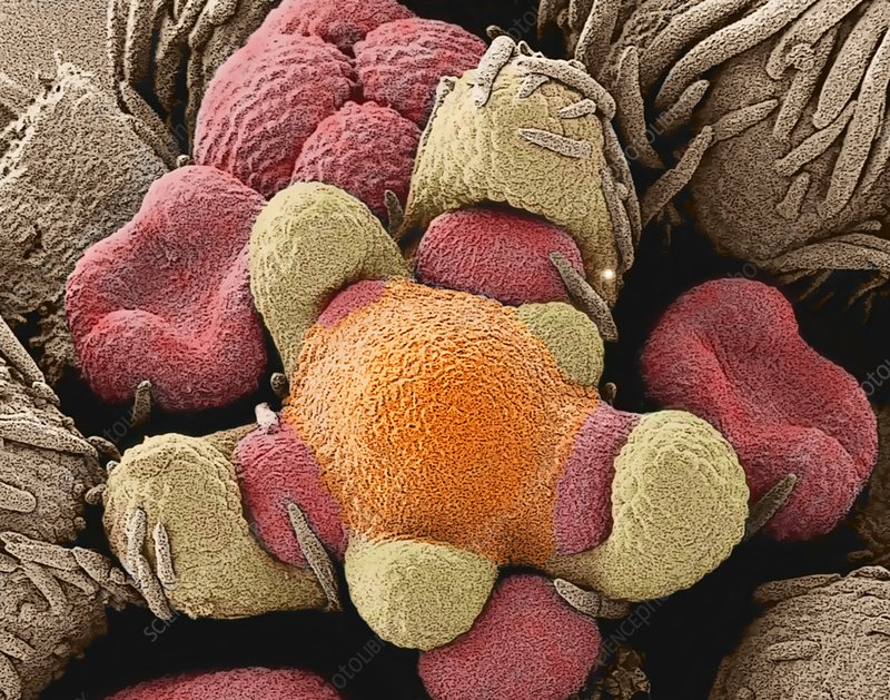 Developing flower bud, SEM