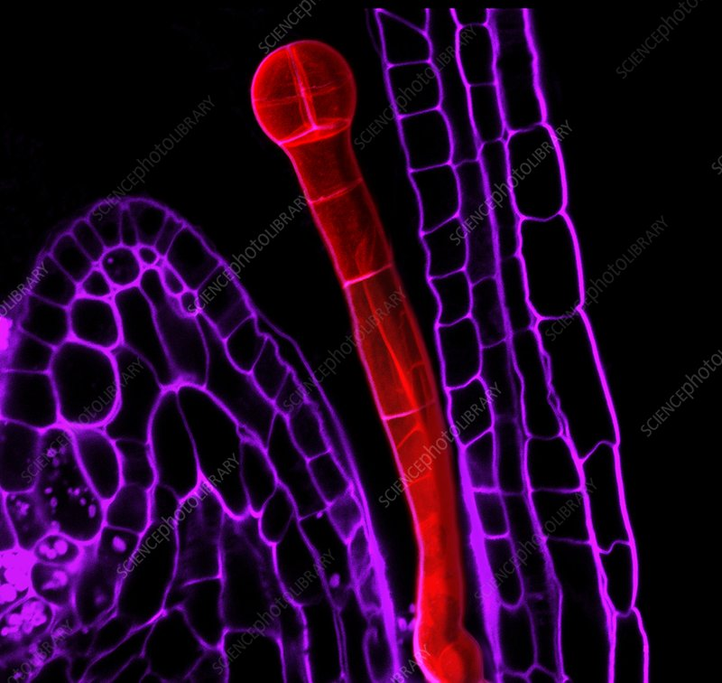 Plant embryo, light micrograph