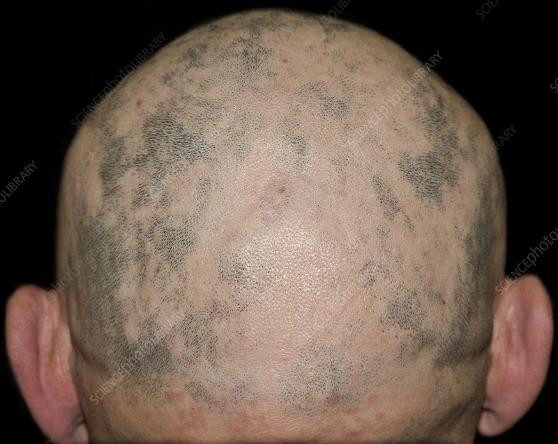 Hair loss disorder