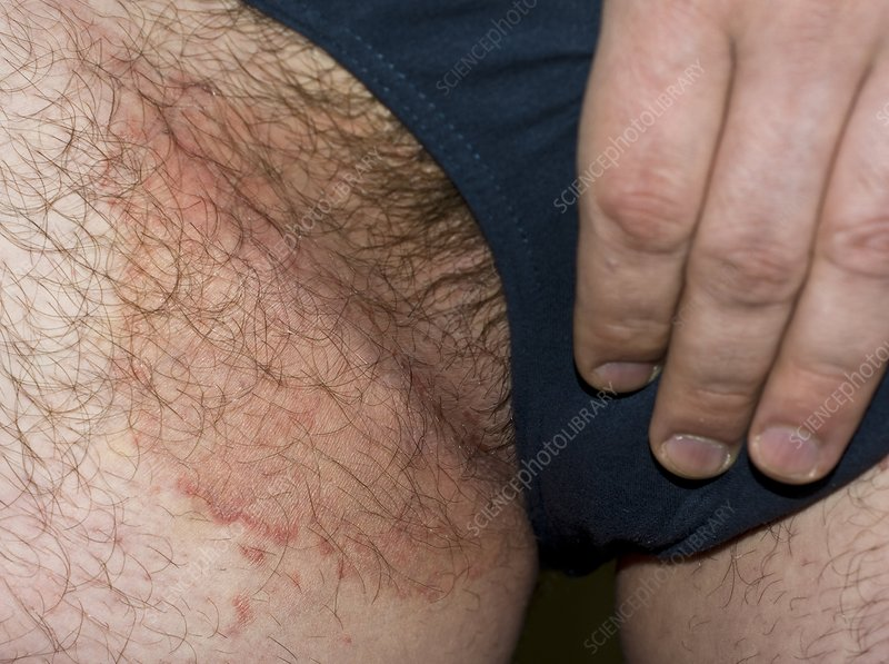 Ringworm on the groin