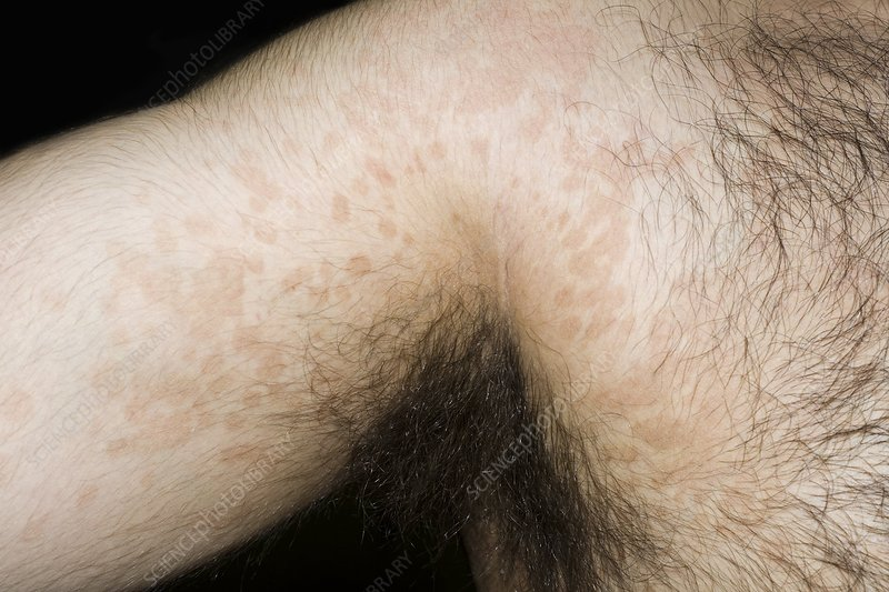 Tinea versicolor skin infection