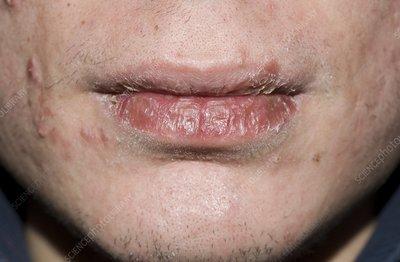 Exfoliative cheilitis - Stock Image - C001/8629 - Science ...