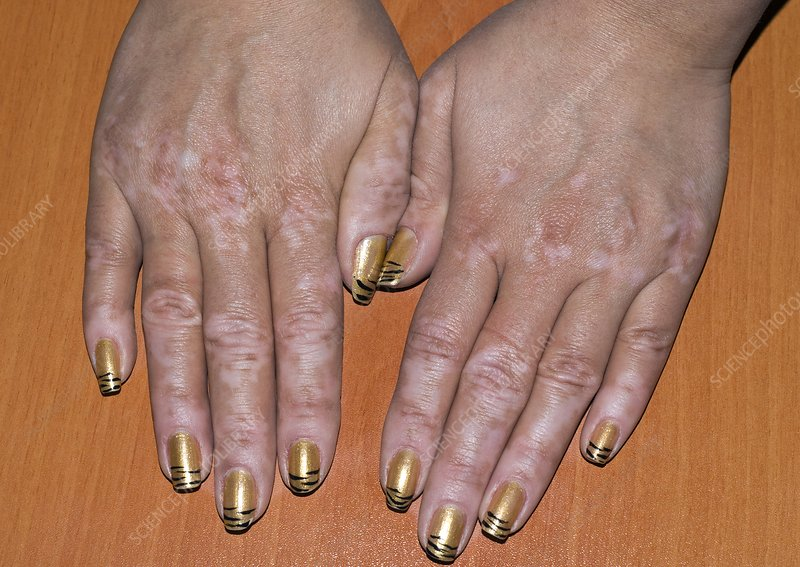 Vitiligo of the hands