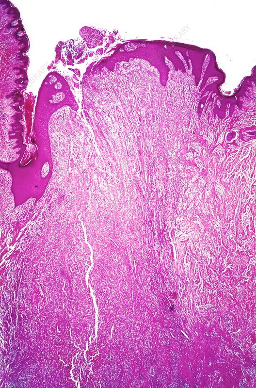 Pilonidal sinus, light micrograph