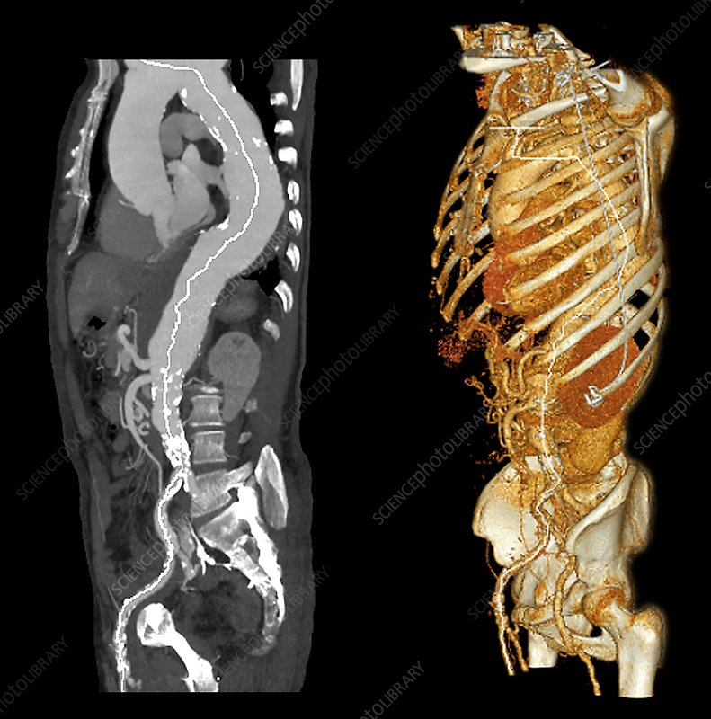 Aortic aneurysm, CT scans