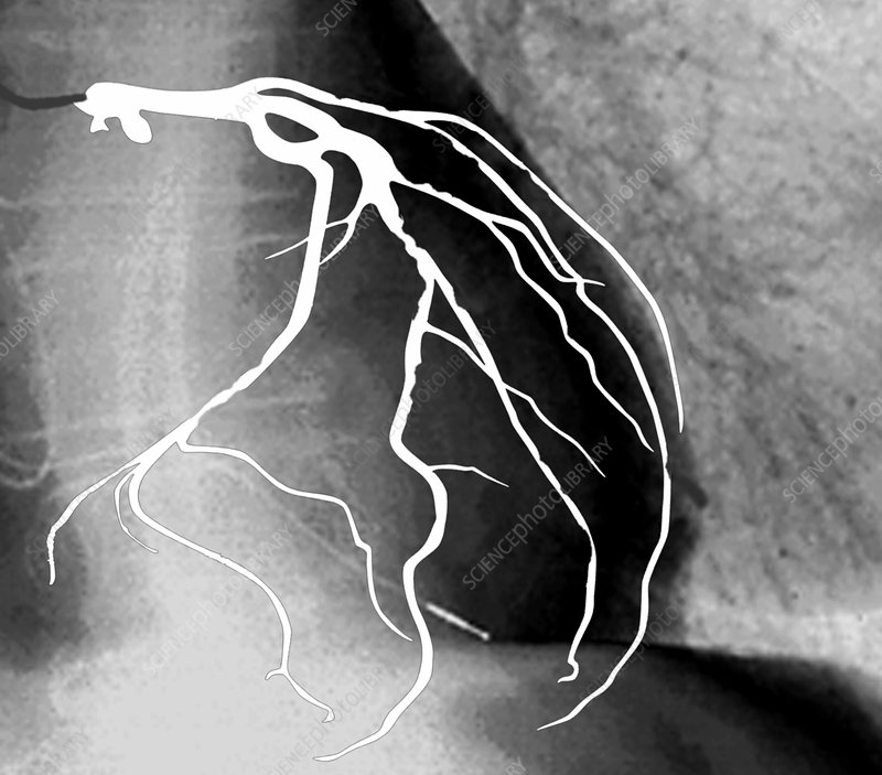 Narrowed heart artery, angiogram