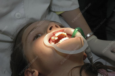 'Orthodontics, adolescent'