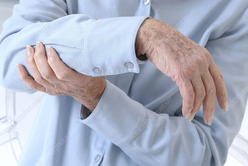 Arm pain elderly people