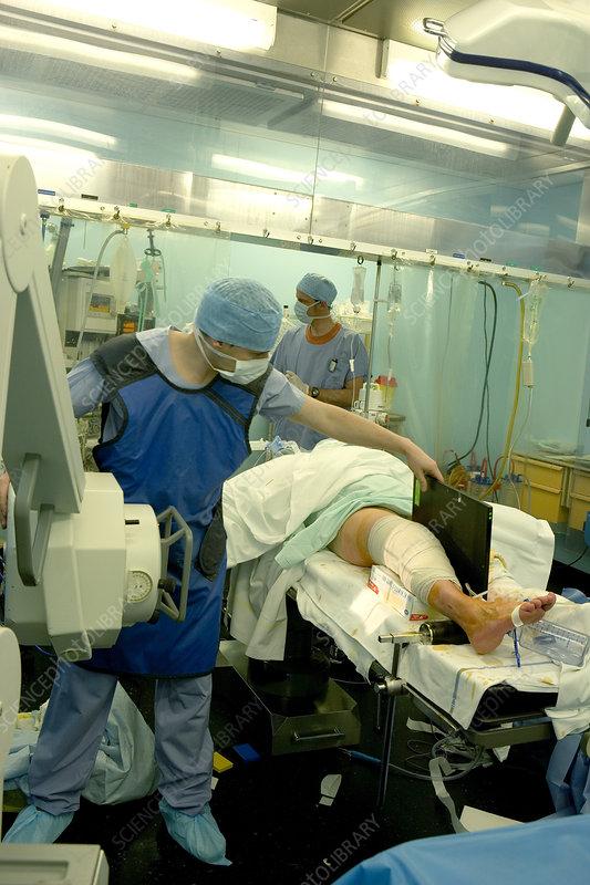 'Knee, x-ray examination'