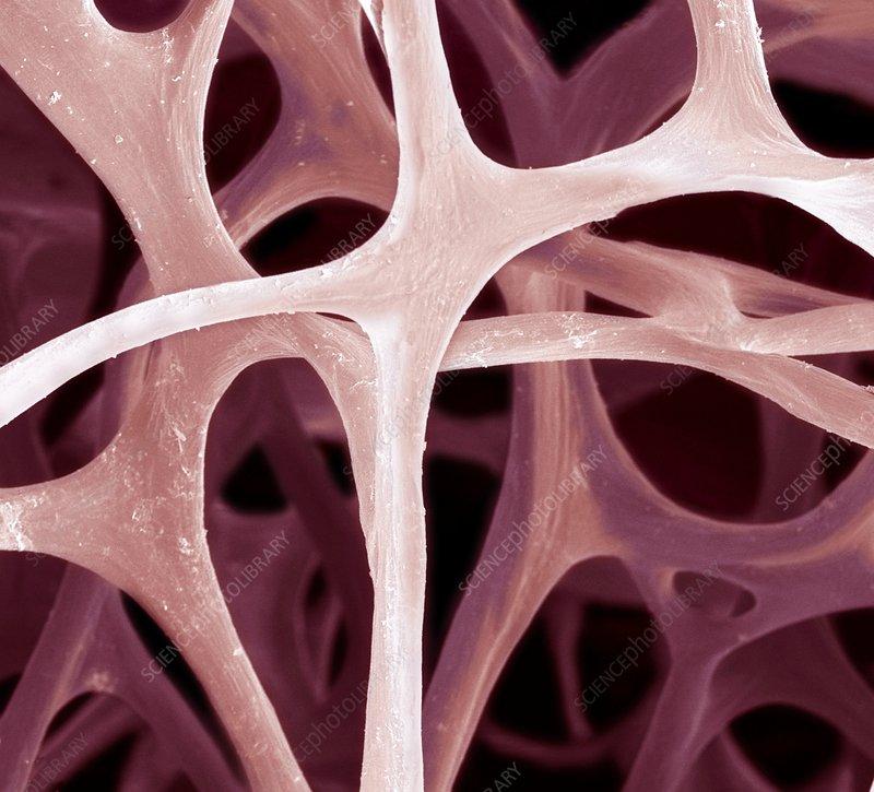 Bird bone tissue, SEM