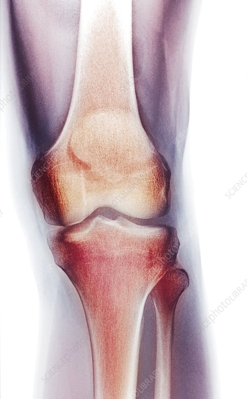 Normal knee, X-ray