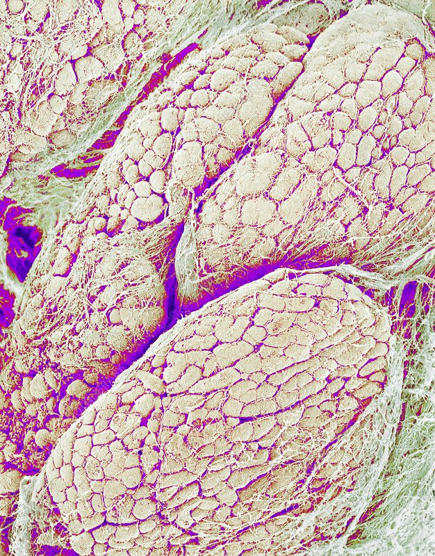 Pancreas surface, SEM