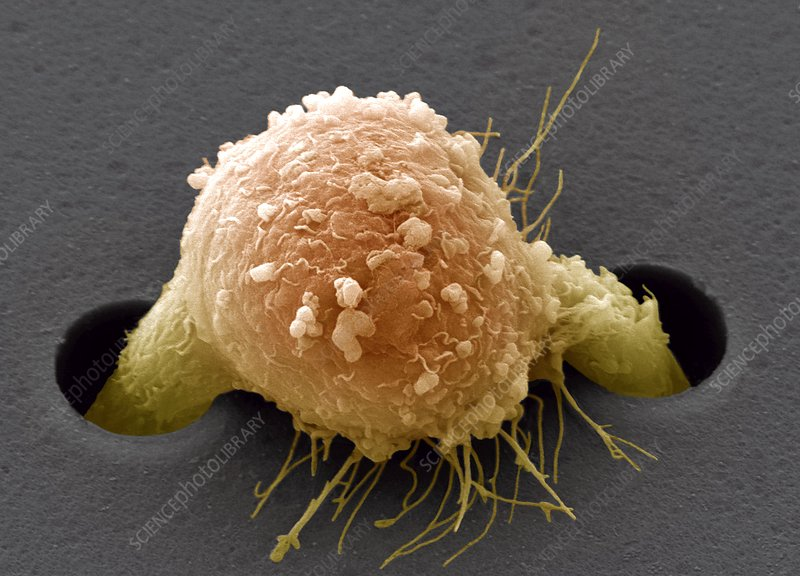 Migrating breast cancer cell, SEM