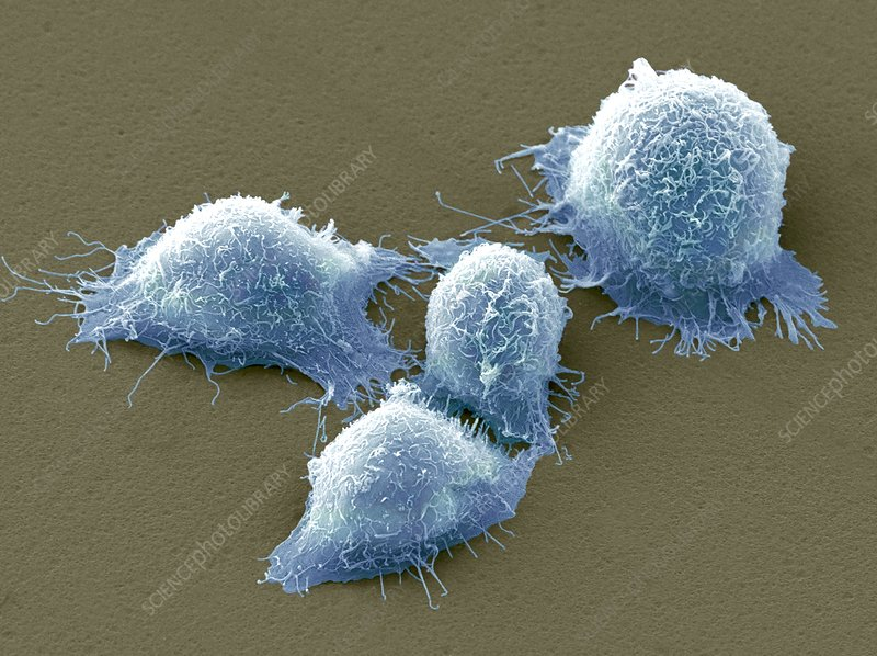 Cervical cancer cells, SEM