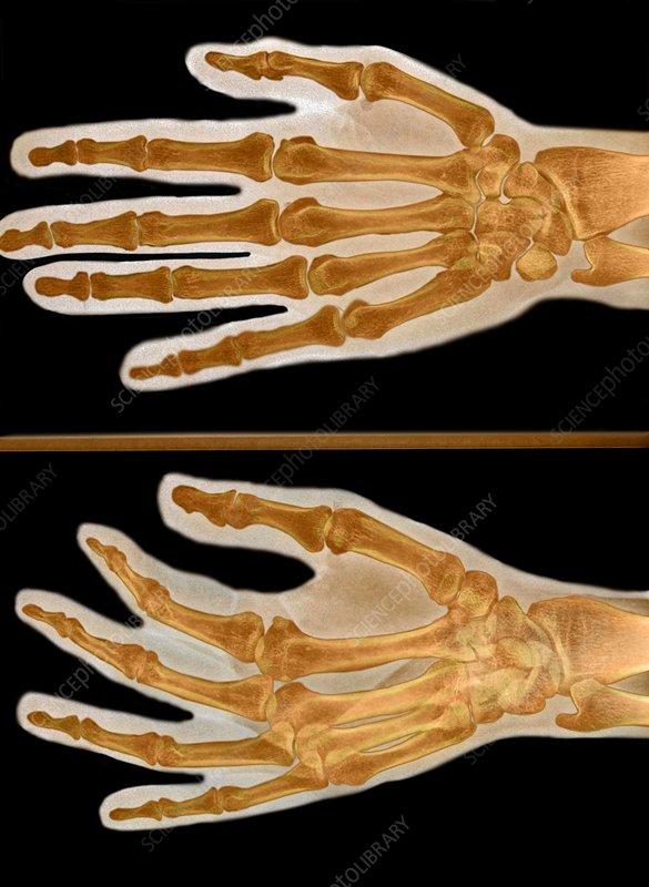 Thumb injury, X-ray