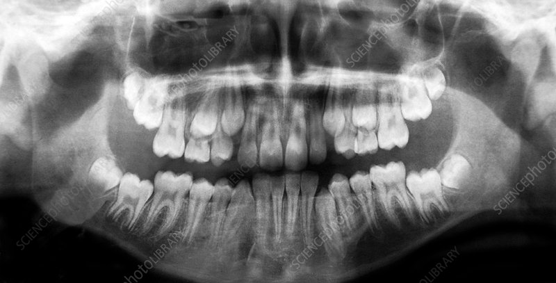 Emergence of adult teeth, X-ray
