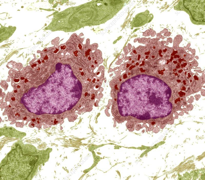 Macrophage cells, TEM