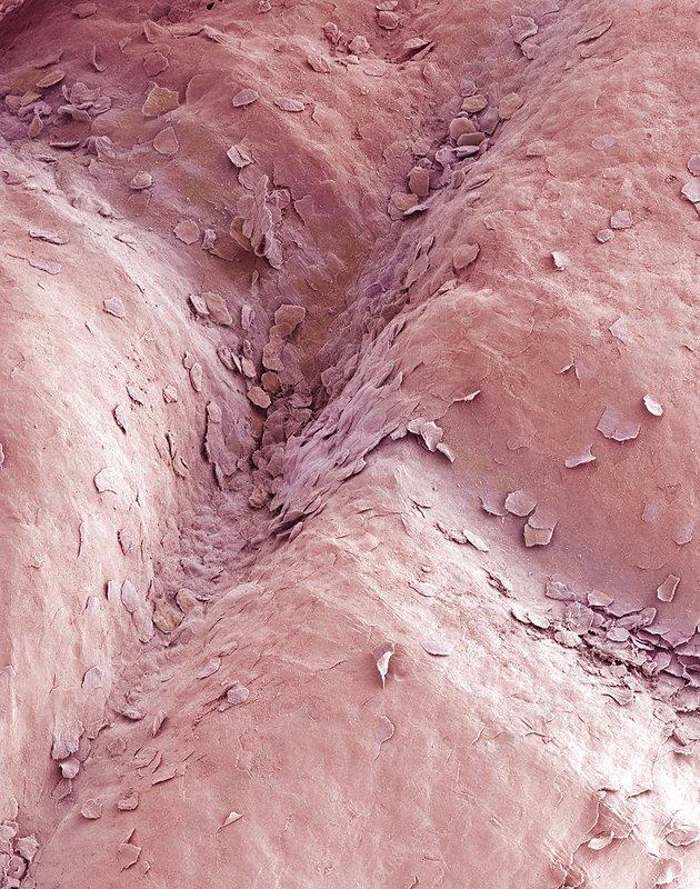 Vaginal lining, SEM
