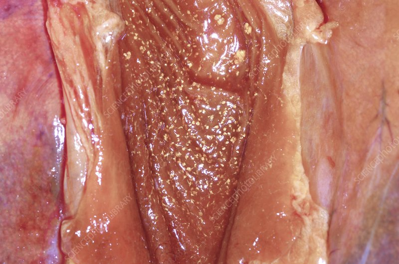 Gallbladder cholesterolosis, post-mortem