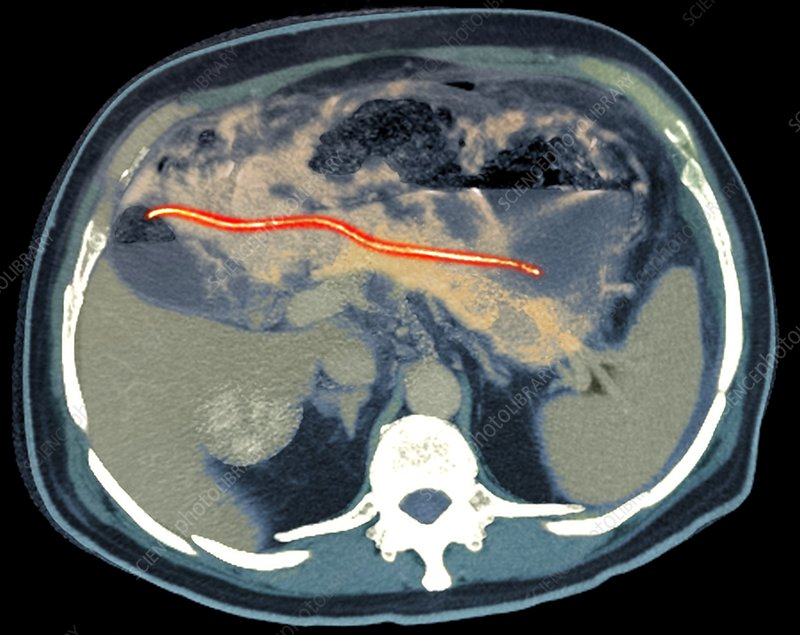 Ectopic pancreatic stent, CT scan