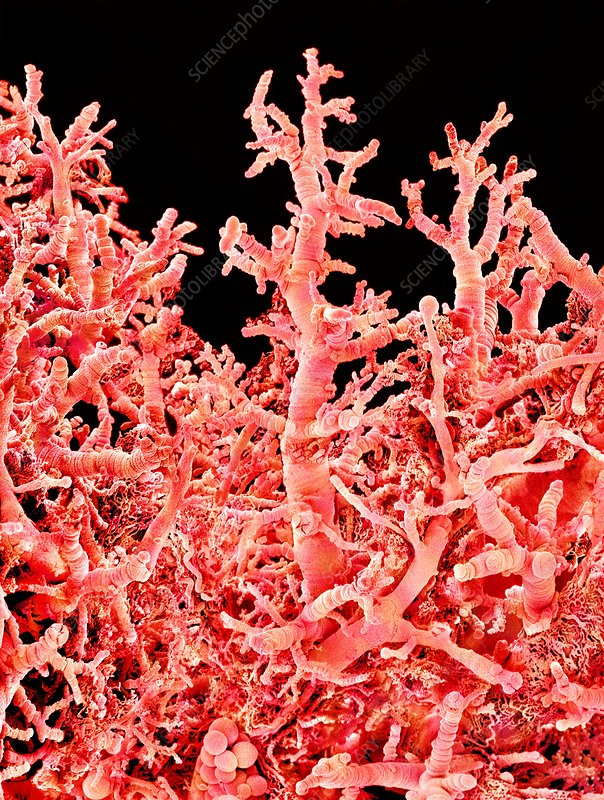 Lung blood vessels, SEM