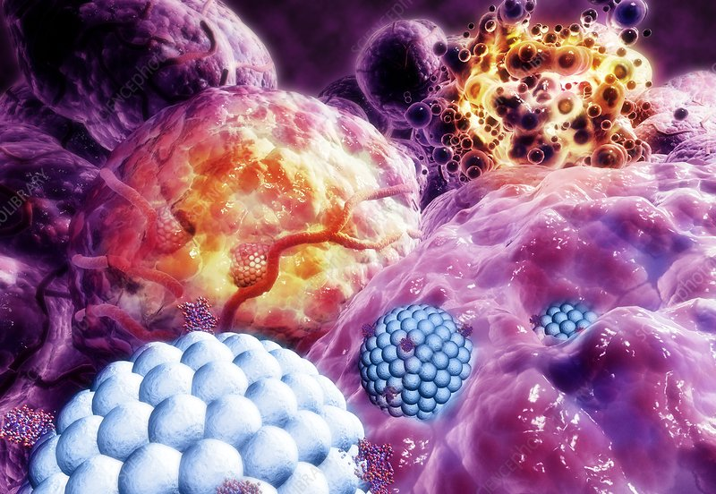 Nanoparticles destroying tumour, artwork