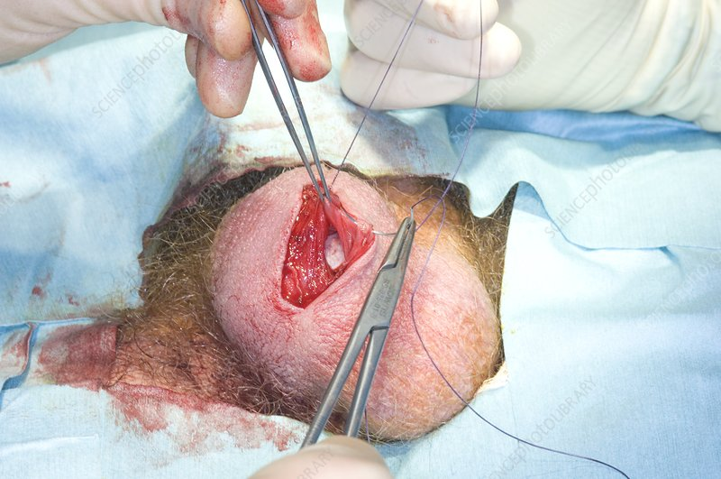 Scrotum surgery