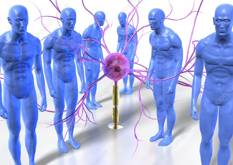 Parkinson's disease, conceptual artwork