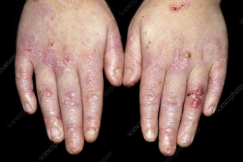 Epidermolysis bullosa skin disease