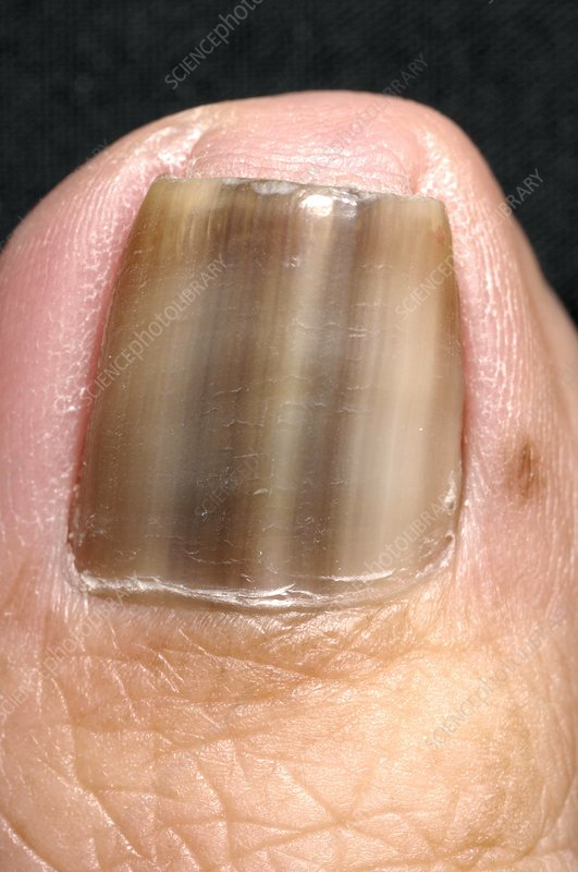 Discoloured nailUnhealthy Toenails