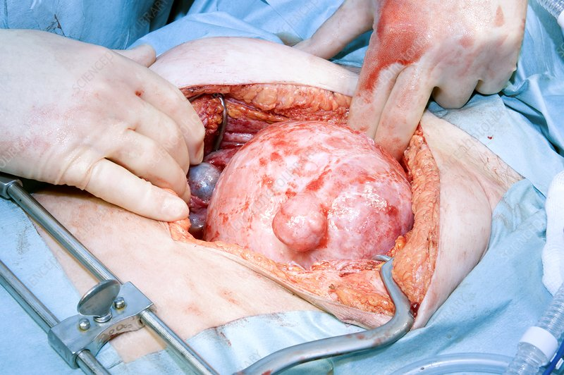 Ovarian cancer surgery
