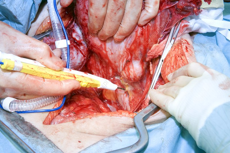 Ovarian Cancer Surgery Stock Image C002 4369 Science Photo Library