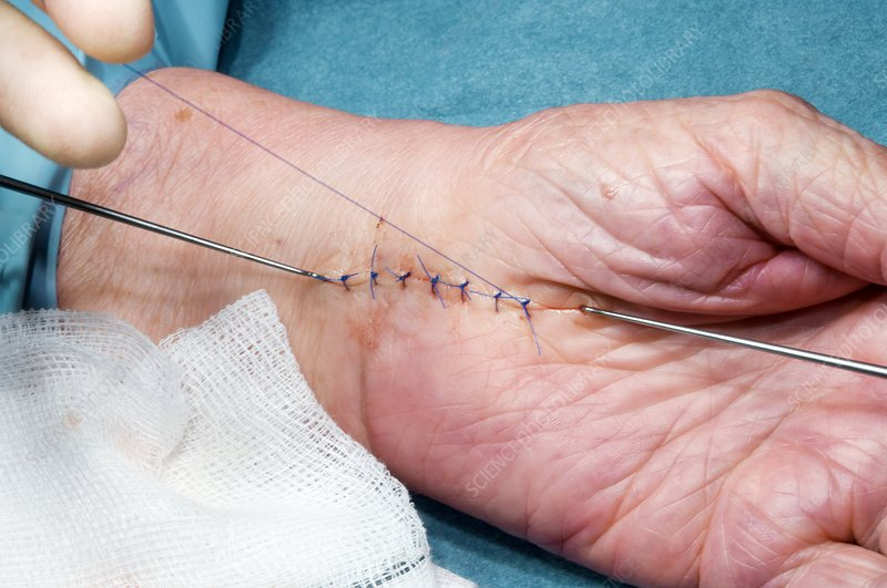 Carpal tunnel syndrome surgery