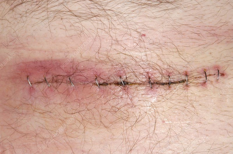 Infected appendix surgery wound