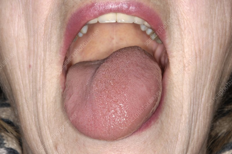 Swollen tongue
