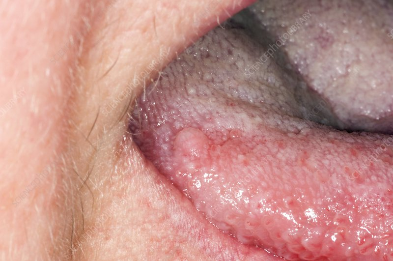 Squamous cell papilloma on tongue