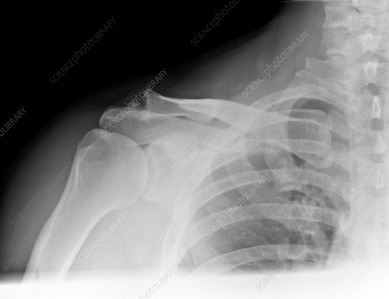 Osteoarthritis of the shoulder, X-ray