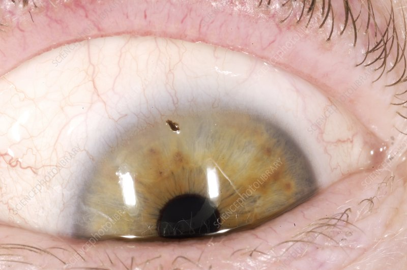 Foreign body in eye