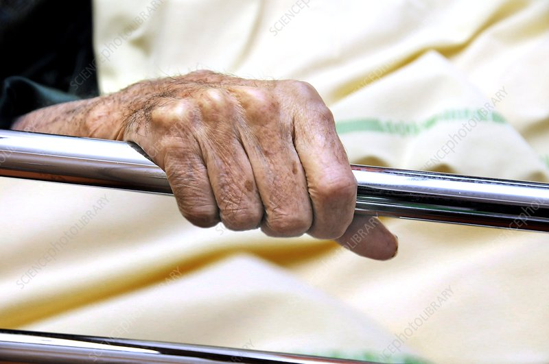 Hand of elderly patient in hospital bed