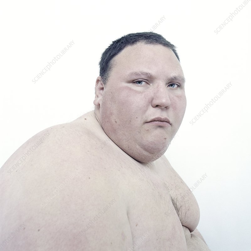 Obese man