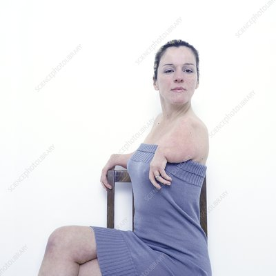 Woman with deformed arms