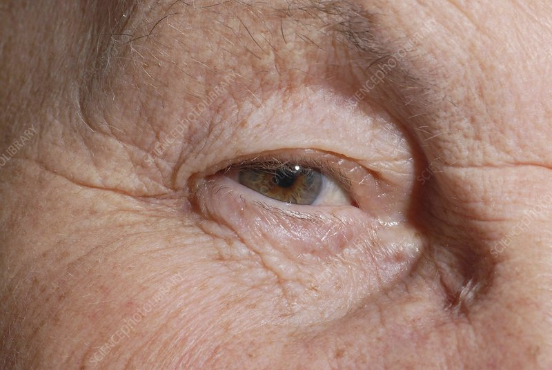 Elderly person's eye