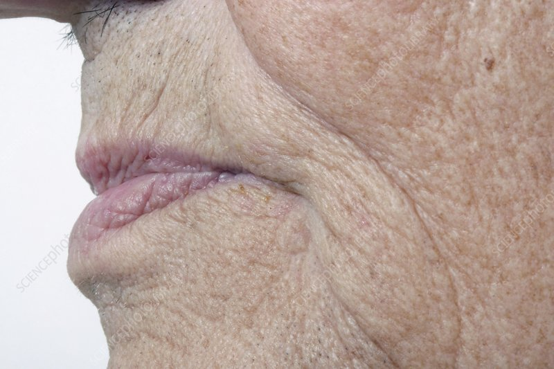 Elderly person's mouth